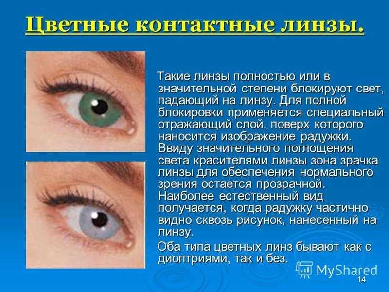 Рейтинг контактных линз для глаз - выбираем лучшую модель по параметрам