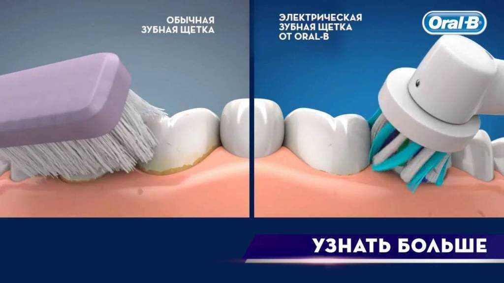 Как выбрать электрическую зубную щетку взрослому – советы, рейтинг, отзывы, цена