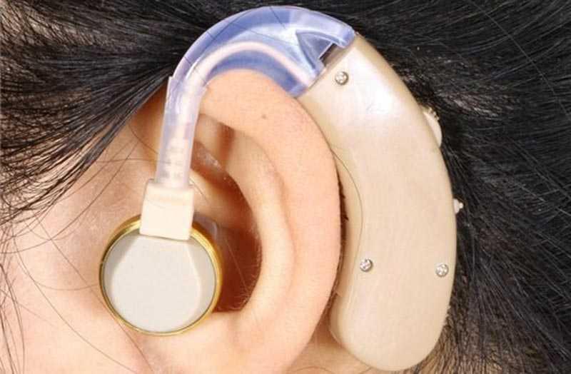 Как выбрать слуховой аппарат: правила подбора слухового аппарата